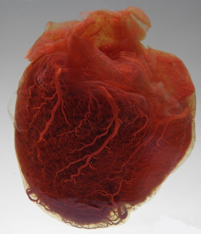 137158143986 - malformalady human heart showing vessels at the